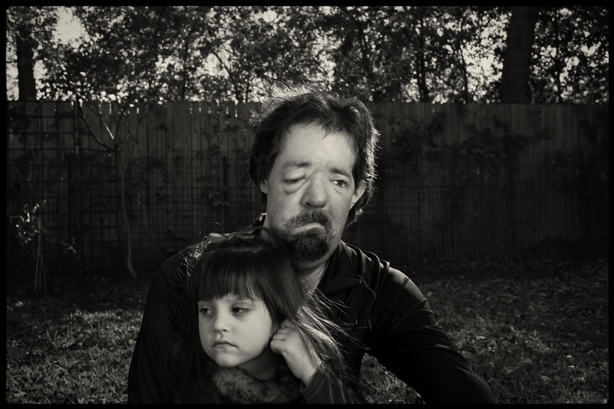 Dalla Wiens, recipient of first successful face transplant, with his daughter - New Yorker Magazine